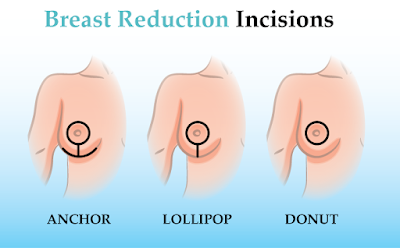 how is breast reduction done