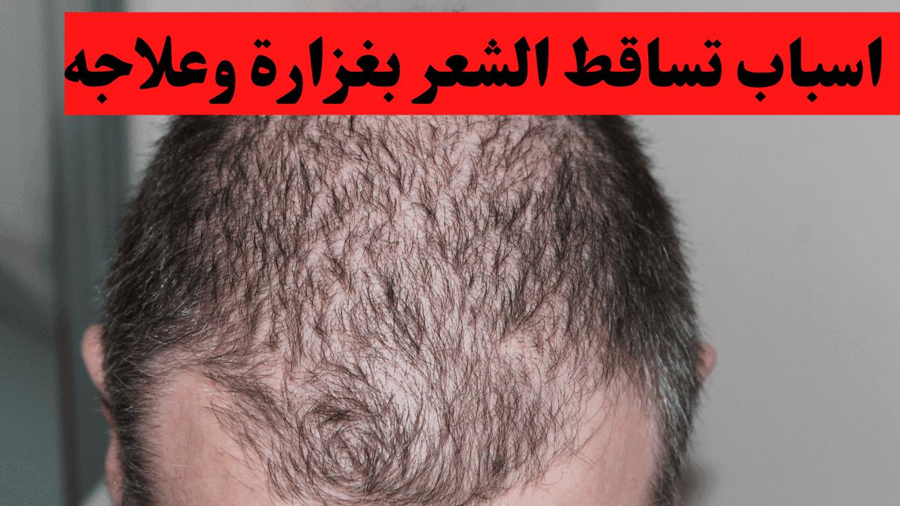 اسباب تساقط الشعر بغزارة وعلاجه