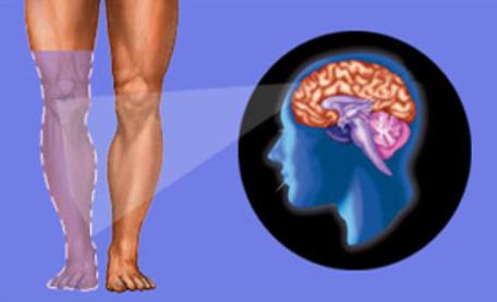 متلازمة ألم الأطراف الوهمي أو الشبحي phantom limb syndrome