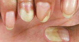 how to whiten yellowed nails