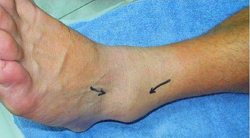Asuhan Keperawatan Pada Keseleo dan Salah Urat (Sprain and Strain) - Intervensi
