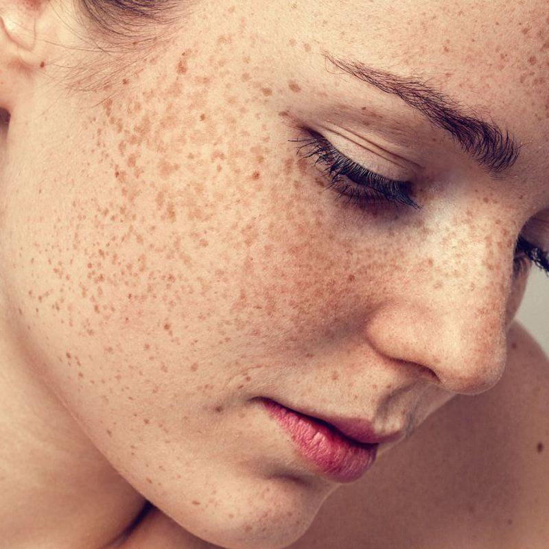 Causes of Dark Skin Pigmentation