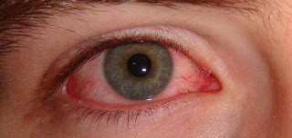 ما أسباب احمرار العين ؟؟؟