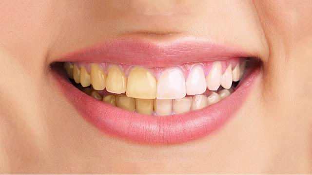 Get Rid Of Yellow Teeth At Home
