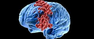 Pengiriman terfokus untuk kanker otak