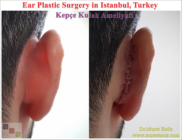 Before and After Photos for Ear Plastic Surgery in Istanbul, Turkey - Ear Plastic Surgery - Protruding Ear Surgery - Modified Technique - Conchomastoid Technique