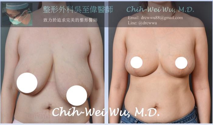 縮胸手術案例4