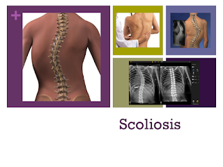 3 x-rays, 2 pictures of the spine, doctor examining the back of a patient