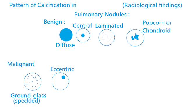 Pattern of Calcification in Pulmonary Nodules on Radiological Findings