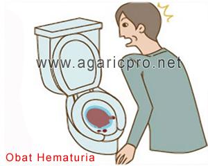 Obat Hematuria Tradisional Pria Dan Wanita Paling Juara
