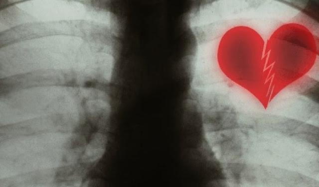 Из-за разбитого сердца действительно можно умереть, утверждают кардиологи