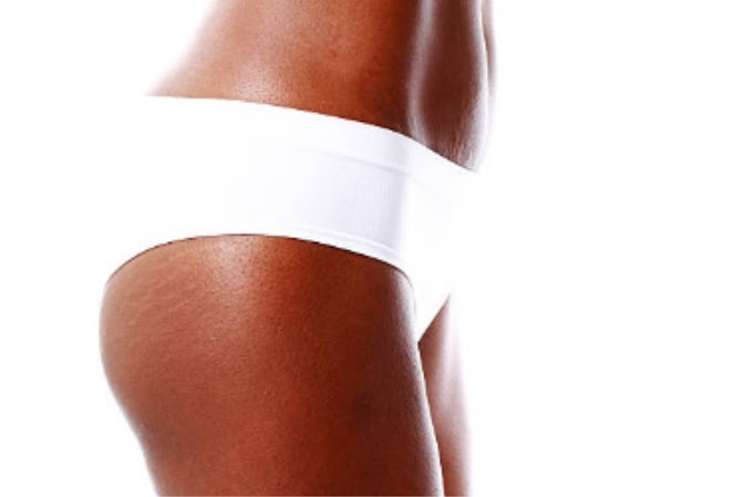6 Methods to Prevent Stretch Marks Appearance