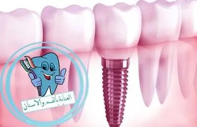 زراعة الاسنان - مدة زراعة الاسنان -مخاطر زراعة الاسنان -الم زراعة الاسنان -عيوب زراعة الاسنان -تجربتي في زراعة الاسنان -اخطاء زراعة الاسنان -اسعار زراعة الاسنان