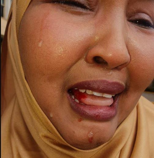 Female lawmaker in Kenya beaten up by male colleague