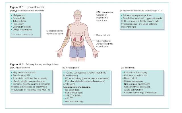 Hypercalcaemia