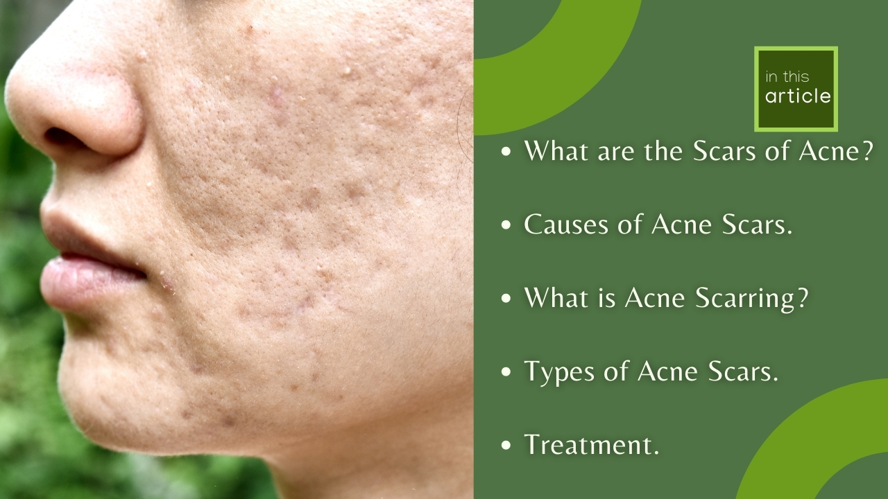 Acne Scars Types | Understanding The Background Of Acne Scars.