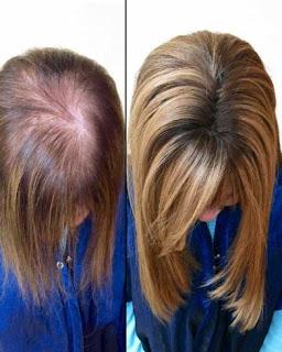 Cara Perawatan Rambut Setelah Treatment Hair Extensions