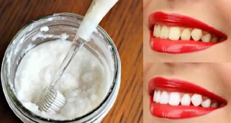 قولوا وداعا للطبيب واحصلوا على اسنان بيضاء كالثلج بمكون واحد موجود في المطبخ