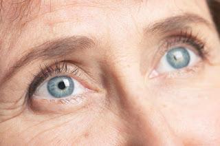 ماهو علاج المياه البيضاء في العين طبيعيا