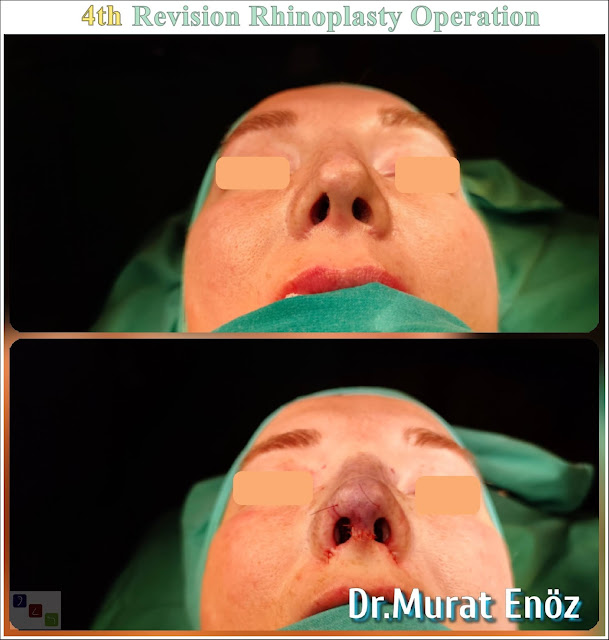 4. Revision Nose Aesthetic in Istanbul