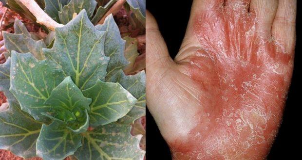 اذا كنتم تعرفون شخصا مصابا بالأكزيما فلا تبخلوا عليه بهذه العشبة المجربة و الأكيييدة