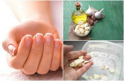 Les ingrédients de ce traitement accélèrent la pousse des ongles et les renforcent