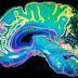 Ο εγκέφαλος «ζει» ακόμα και μετά τον θάνατο
