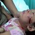 Bayi Cedera Dicakar Kera Peliharaan