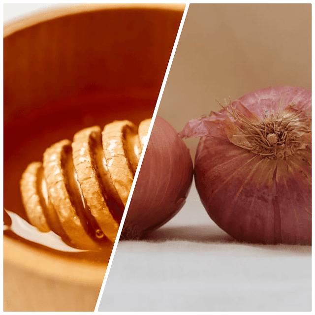 وصفة البصل والعسل للشعر
