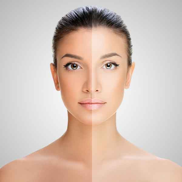 How to Remove Tan from Face Naturally | Skin Tanning Removal Home Remedies