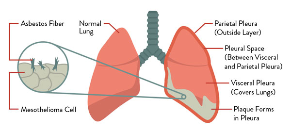 Difference Between Pleural Mesothelioma and Lung Cancer