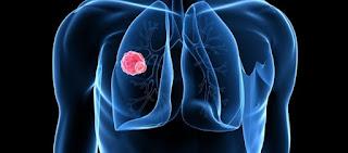 Καρκίνος του πνεύμονα: Συμπτώματα, στάδια και παράγοντες που ευνοούν την εμφάνισή του