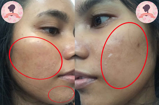 Hasil-micro-laser-PPP-Laser-Clinic