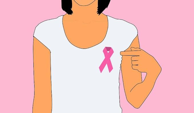 Payudara dan Stigmatisasi Tubuh Perempuan: Perjuangan Pasien Kanker
