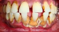 Kerusakan gigi merupakan salah satu penyakit yang paling umum di dunia gobekasi 10 Tips Mengurangi Kerusakan Gigi