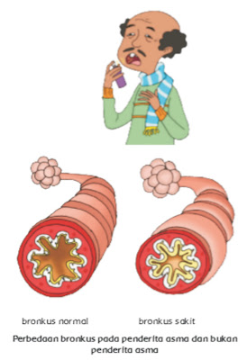 Asma merupakan penyakit penyumbatan saluran pernapasan yang disebabkan oleh alergi. Pencetus alergi misalnya udara dingin, rambut, bulu, kotoran, debu, atau tekanan psikologis.