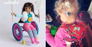 Η πρώτη κούκλα με αναπηρία στον κόσμο κυκλοφόρησε.