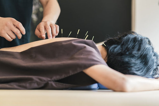 Manfaat Akupuntur Untuk Asam Lambung