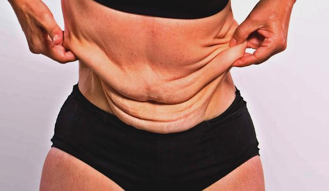 التخلص من الجلد المترهل بعد فقدان الوزن