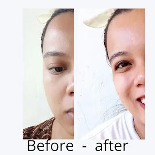 Before after pemakaian ElsheSkin Hydraboost Oil free moisturizer