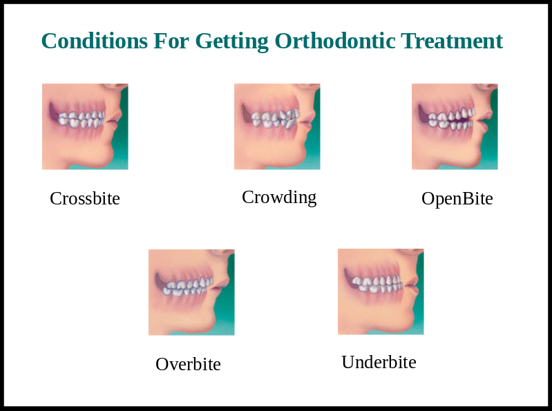 Laser Dental Treatment Orthodontic Treatment In Bangalore