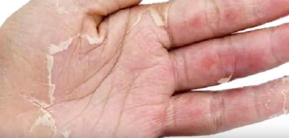 Deskuamasi yang terjadi pada tangan