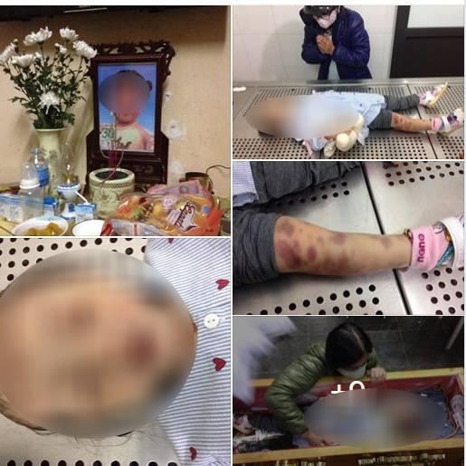 Chủ tịch Hà Nội yêu cầu điều tra cha dượng và mẹ đẻ bạo hành bé 4 tuổi đến tử vong