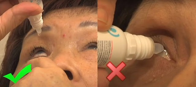 Educating Patients How to Apply Eye Drops Correctly