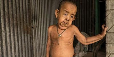 Anak Berusia 4 Tahun Terlihat Seperti Sudah Tua