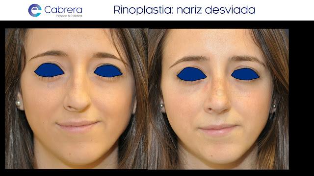 Caso antes y después 1 Rinoplastia Córdoba