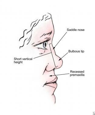 Saddle Nose Deformity