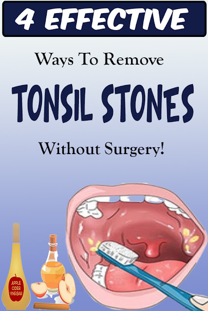 .4 EFFECTIVE WAYS TO REMOVE TONSIL STONES WITHOUT SURGERY