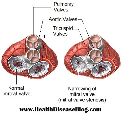 Normal Mitral Valve vs Stenosed Mitral Valve