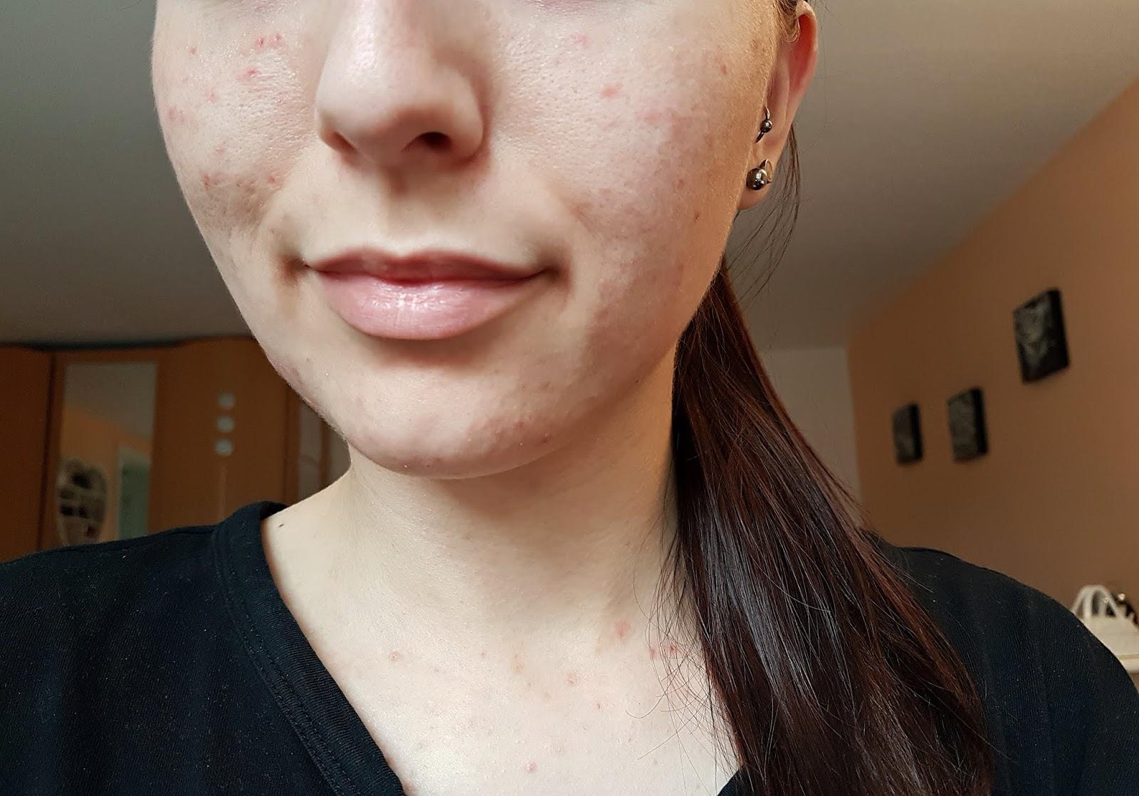 Mein Leben mit Skin Picking/Dermatillomanie: Eindrücke